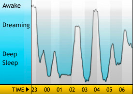 Schlafphasen-Wecker: Sleep Cycle